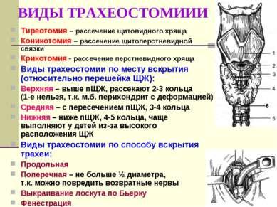 ВИДЫ ТРАХЕОСТОМИИИ Тиреотомия – рассечение щитовидного хряща Коникотомия – ра...