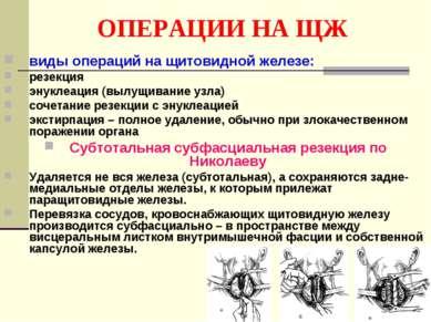 ОПЕРАЦИИ НА ЩЖ виды операций на щитовидной железе: резекция энуклеация (вылущ...