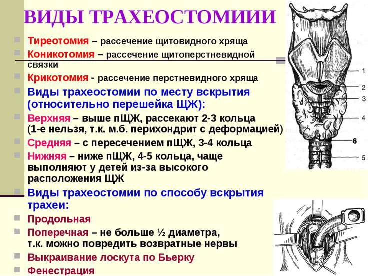 Тиреотомия
