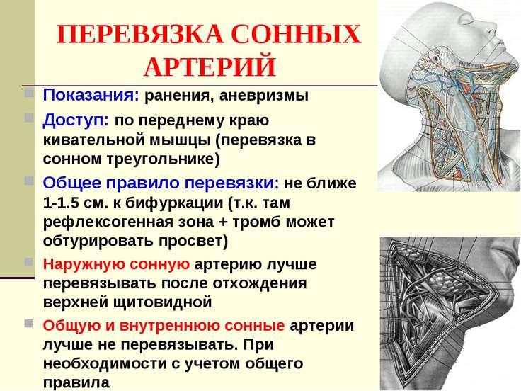 ПЕРЕВЯЗКА СОННЫХ АРТЕРИЙ Показания: ранения, аневризмы Доступ: по переднему к...