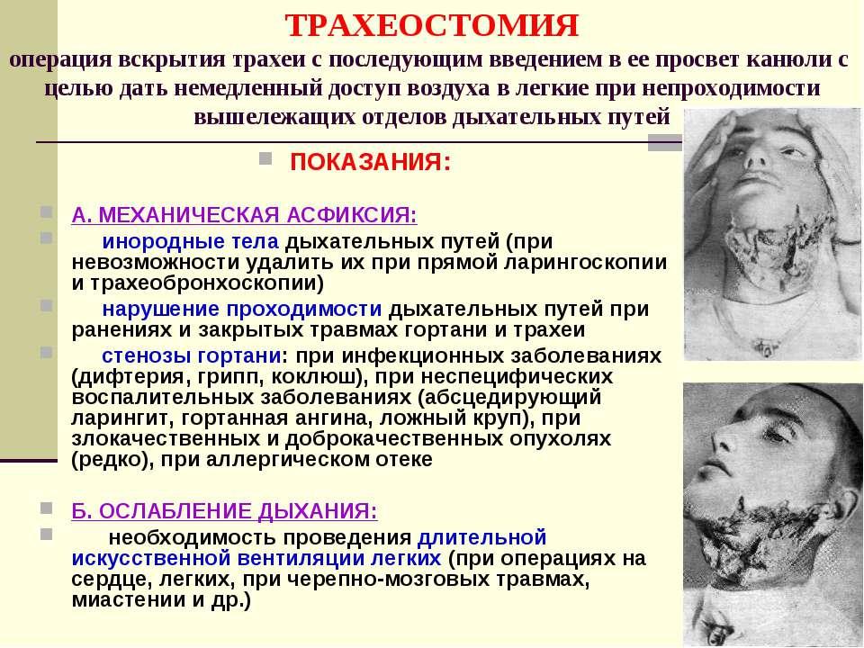 ТРАХЕОСТОМИЯ операция вскрытия трахеи с последующим введением в ее просвет ка...