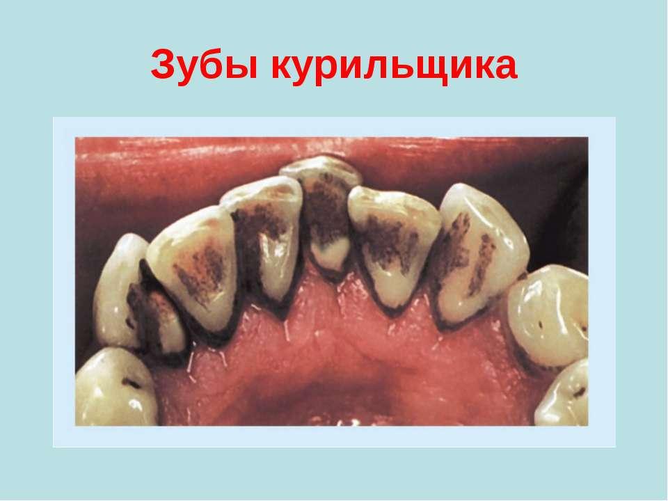 Зубы курильщика