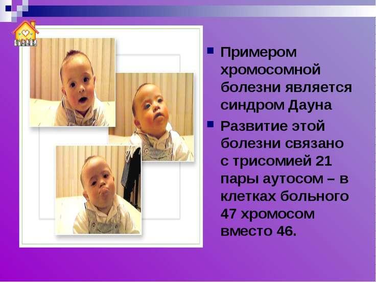 Примером хромосомной болезни является синдром Дауна Развитие этой болезни свя...