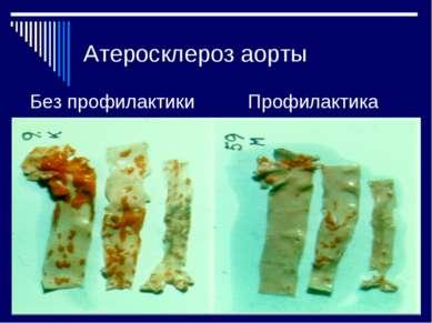 Атеросклероз аорты Без профилактики Профилактика
