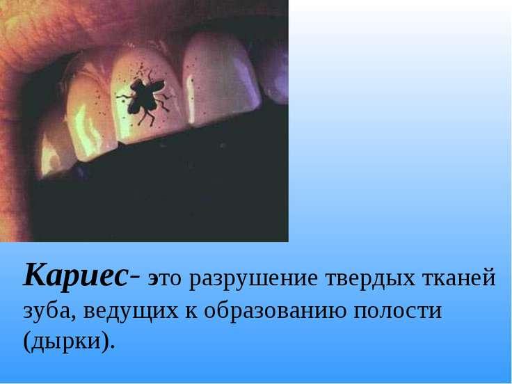 Кариес- это разрушение твердых тканей зуба, ведущих к образованию полости (ды...