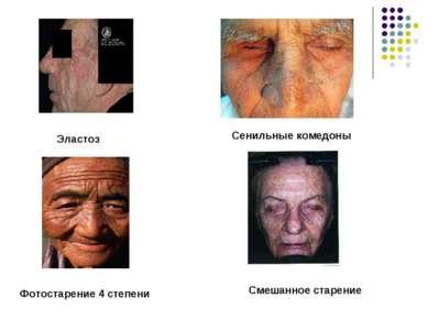 Эластоз Сенильные комедоны Фотостарение 4 степени Смешанное старение
