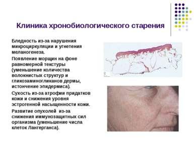 Клиника хронобиологического старения Бледность из-за нарушения микроциркуляци...