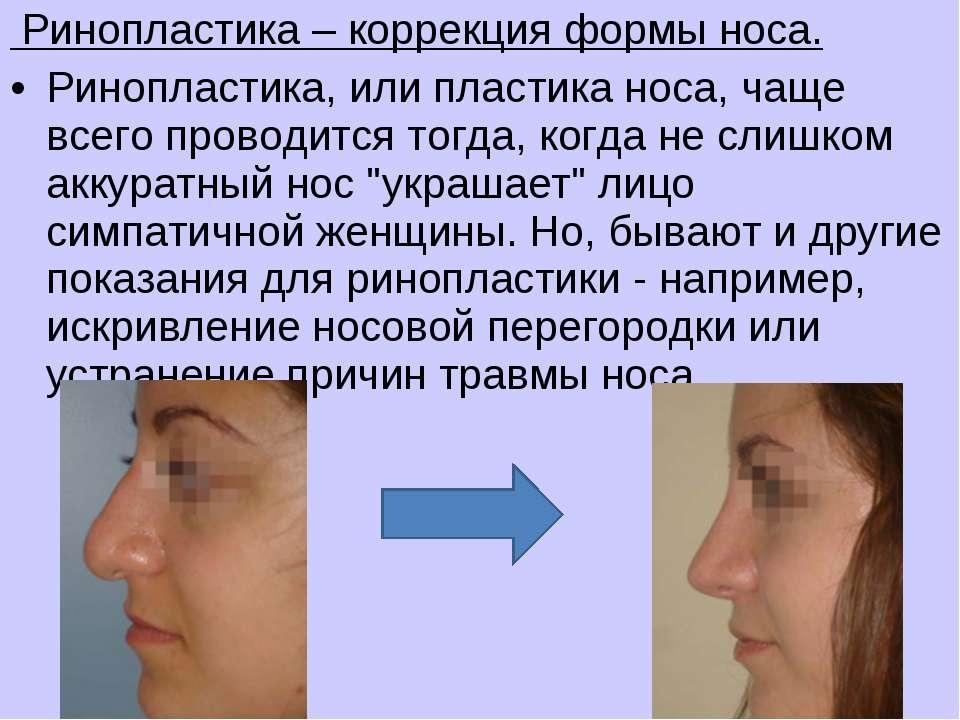 Ринопластика – коррекция формы носа. Ринопластика, или пластика носа, чаще вс...