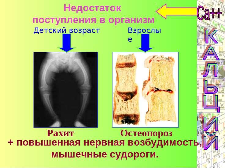 Недостаток поступления в организм Детский возраст Взрослые Рахит Остеопороз +...