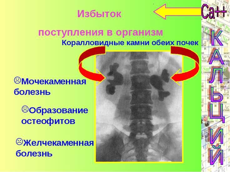 Избыток поступления в организм Образование остеофитов Желчекаменная болезнь М...