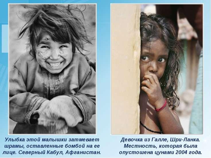Улыбка этой малышки затмевает шрамы, оставленные бомбой на ее лице. Северный ...