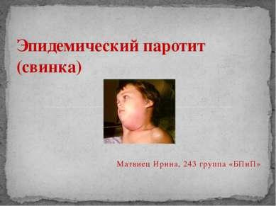 Матвиец Ирина, 243 группа «БПиП» Эпидемический паротит (свинка)
