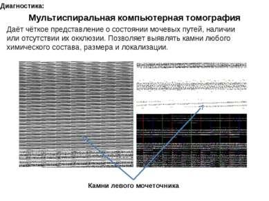 Диагностика: Мультиспиральная компьютерная томография Даёт чёткое представлен...
