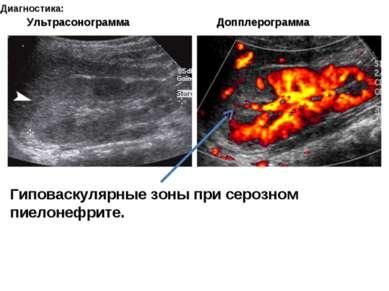 Диагностика: Гиповаскулярные зоны при серозном пиелонефрите. Ультрасонограмма...
