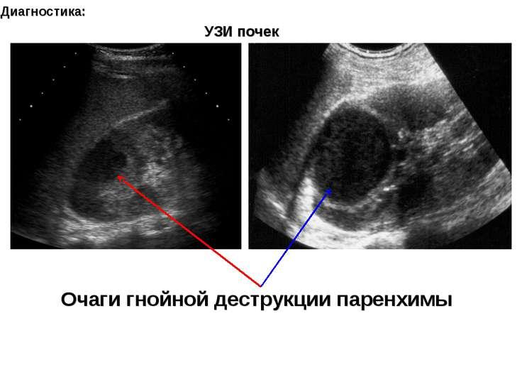 Диагностика: Очаги гнойной деструкции паренхимы УЗИ почек