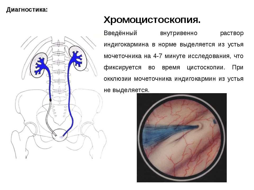 Диагностика: Хромоцистоскопия. Введённый внутривенно раствор индигокармина в ...