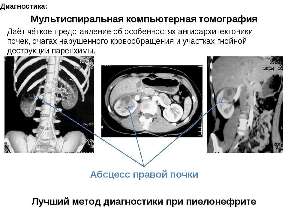 Диагностика: Лучший метод диагностики при пиелонефрите Мультиспиральная компь...