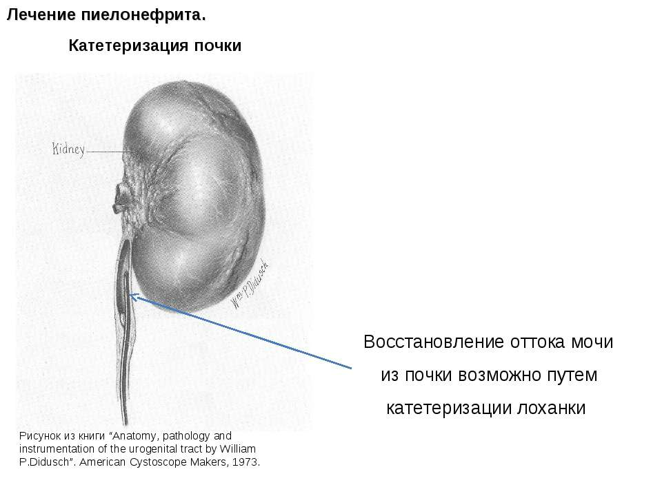 Катетеризация почки Лечение пиелонефрита. Восстановление оттока мочи из почки...