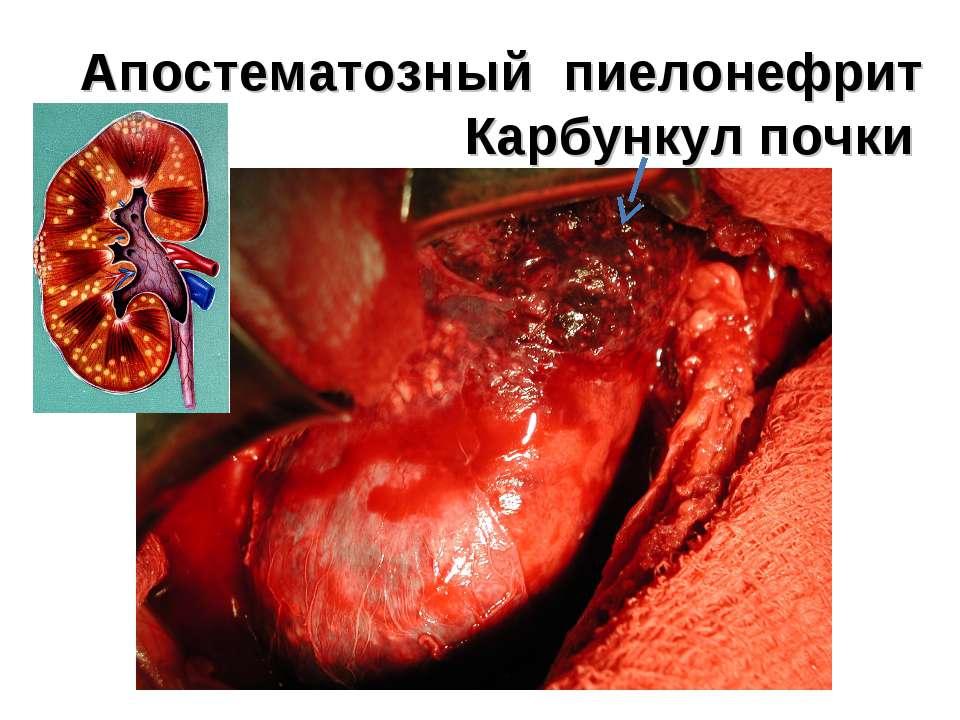 Апостематозный пиелонефрит Карбункул почки