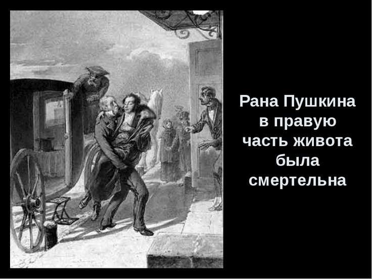 Рана Пушкина в правую часть живота была смертельна