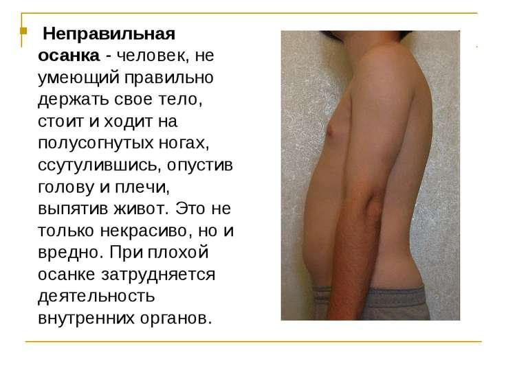 Неправильная осанка- человек, не умеющий правильно держать свое тело, стоит...