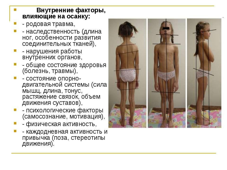 Внутренние факторы, влияющие на осанку: - родовая травма, - наследственность ...