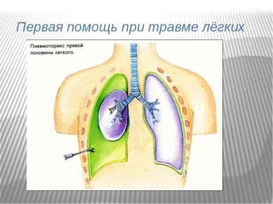 Первая помощь при травме лёгких