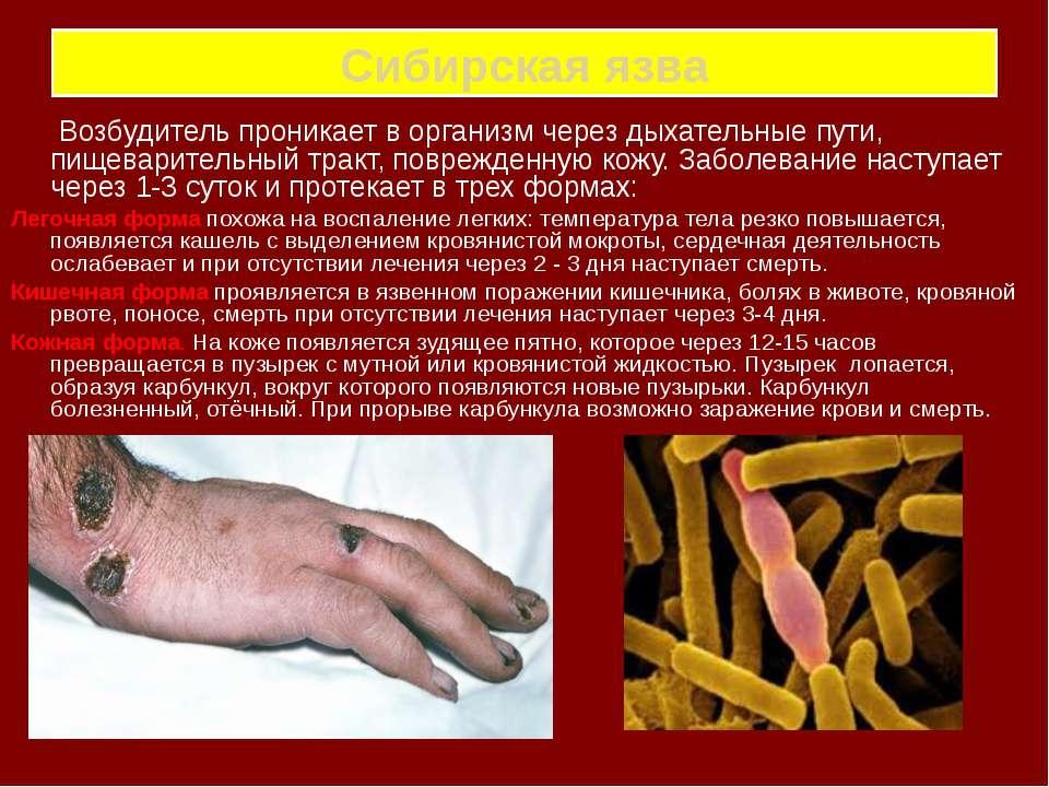 Сибирская язва Возбудитель проникает в организм через дыхательные пути, пищев...