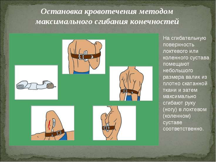 Остановка кровотечения методом максимального сгибания конечностей На сгибател...