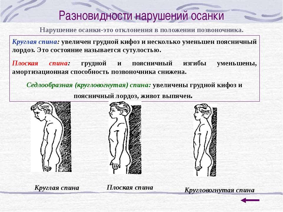 Упражнения по профилактике искривления позвоночника