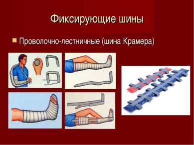 Фиксирующие шины Проволочно-лестничные (шина Крамера)