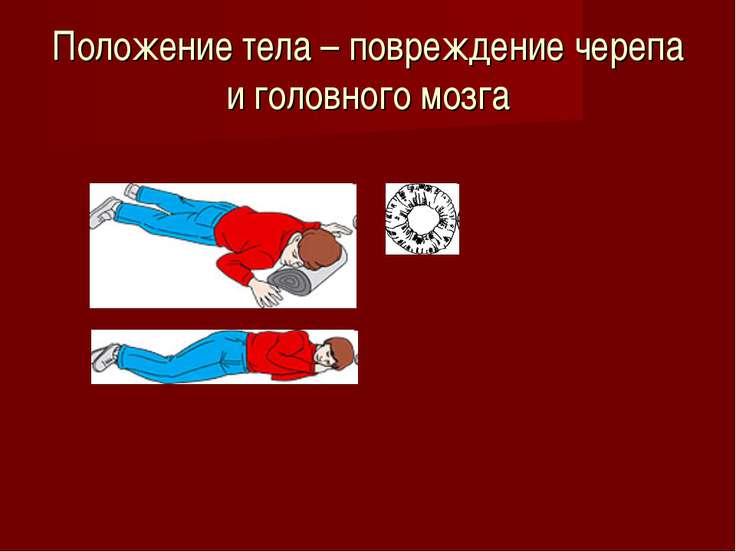 Положение тела – повреждение черепа и головного мозга