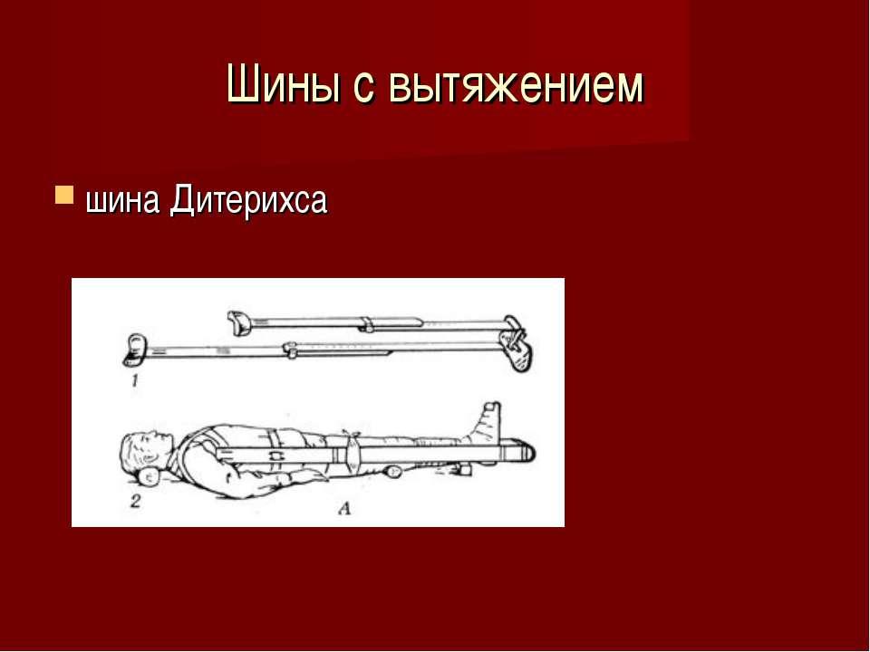 Шины с вытяжением шина Дитерихса