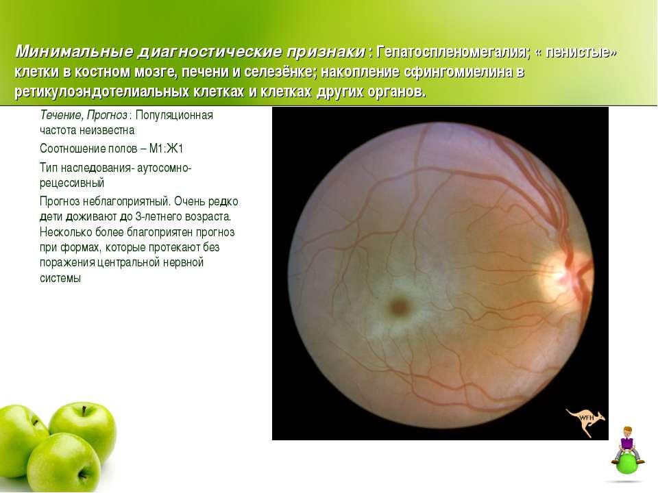 Минимальные диагностические признаки : Гепатоспленомегалия; « пенистые» клетк...