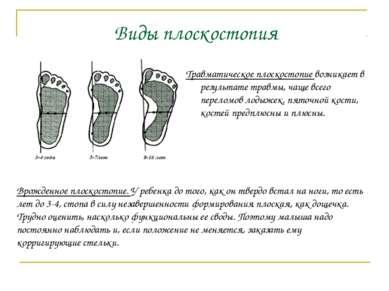 Травматическое плоскостопие возникает в результате травмы, чаще всего перелом...