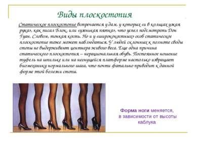 Статическое плоскостопие встречается у дам, у которых «и в кольцах узкая рука...