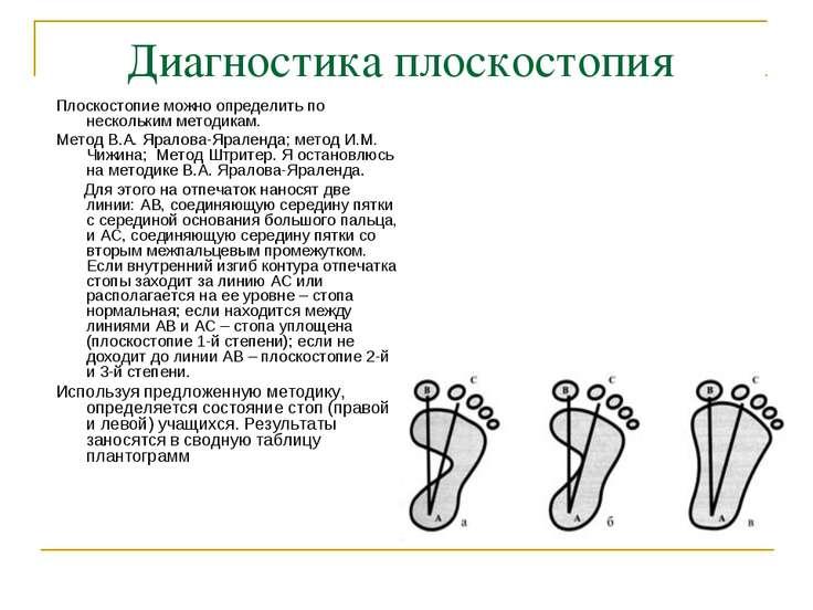 Диагностика плоскостопия Плоскостопие можно определить по нескольким методика...