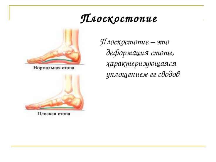 Плоскостопие – это деформация стопы, характеризующаяся уплощением ее сводов П...