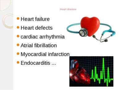 Heart disease Heart failure Heart defects cardiac arrhythmia Atrial fibrillat...