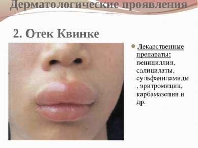 Дерматологические проявления 2. Отек Квинке Лекарственные препараты: пеницилл...