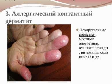 Дерматологические проявления 3. Аллергический контактный дерматит Лекарственн...
