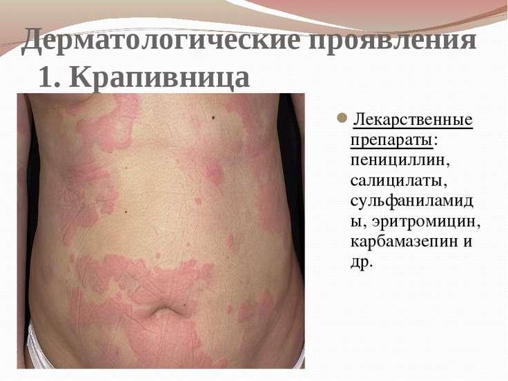 Дерматологические проявления 1. Крапивница Лекарственные препараты: пеницилли...