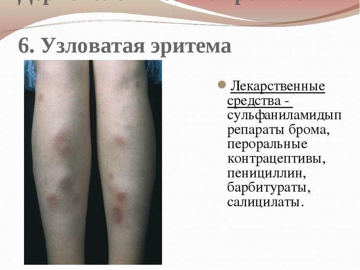 Дерматологические проявления 6. Узловатая эритема Лекарственные средства - су...
