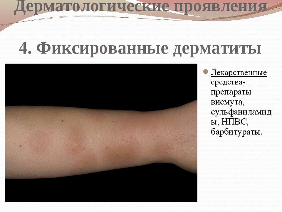 Дерматологические проявления 4. Фиксированные дерматиты Лекарственные средств...