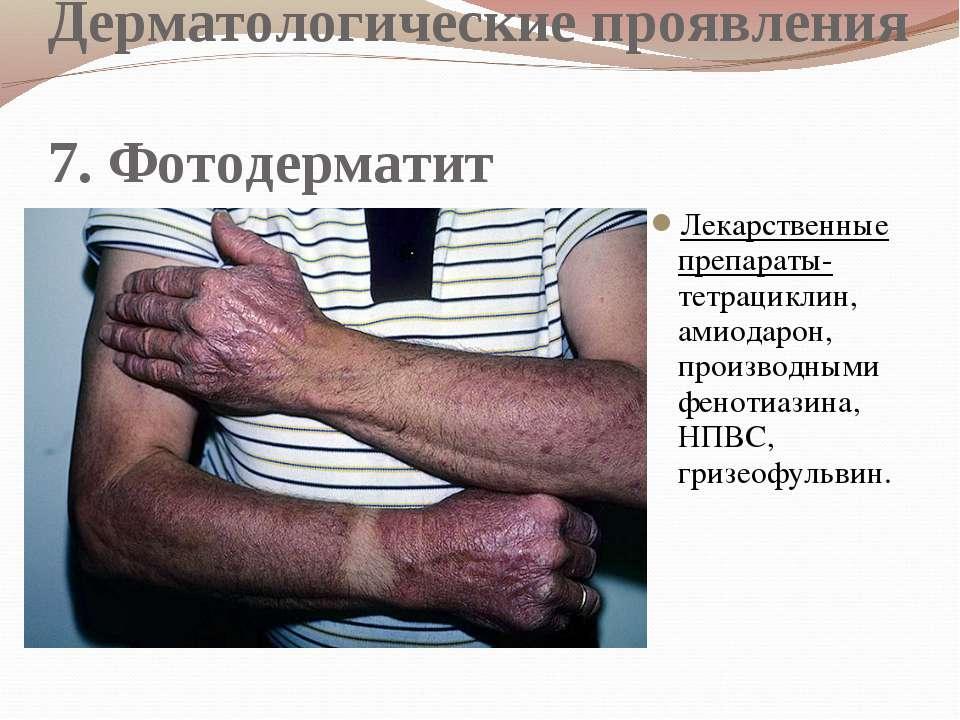 Дерматологические проявления 7. Фотодерматит Лекарственные препараты- тетраци...