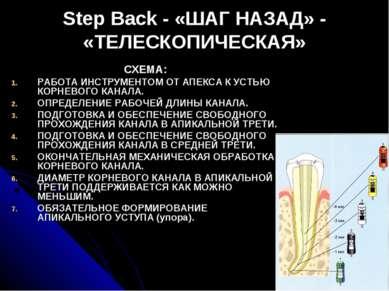 Step Back - «ШАГ НАЗАД» - «ТЕЛЕСКОПИЧЕСКАЯ» СХЕМА: РАБОТА ИНСТРУМЕНТОМ ОТ АПЕ...