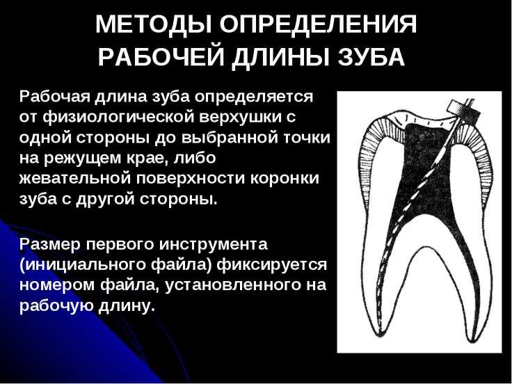 МЕТОДЫ ОПРЕДЕЛЕНИЯ РАБОЧЕЙ ДЛИНЫ ЗУБА Рабочая длина зуба определяется от физи...