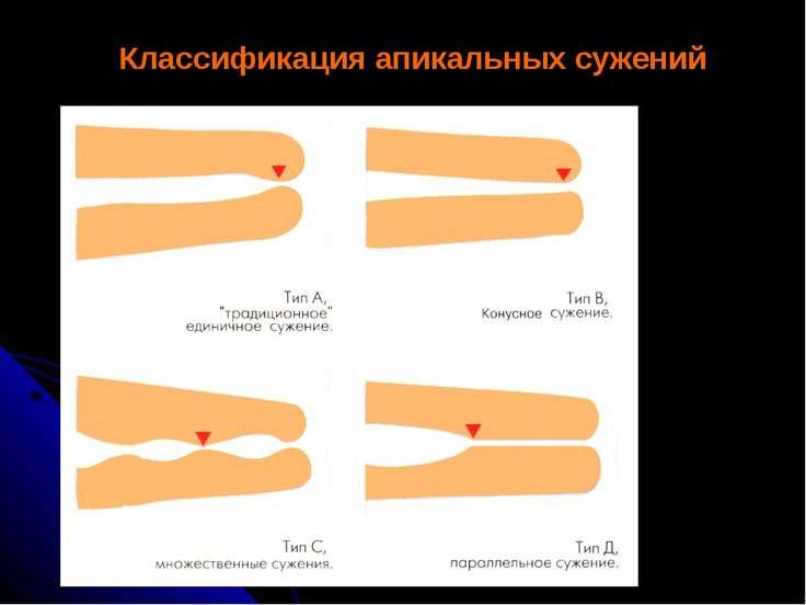 Классификация апикальных сужений