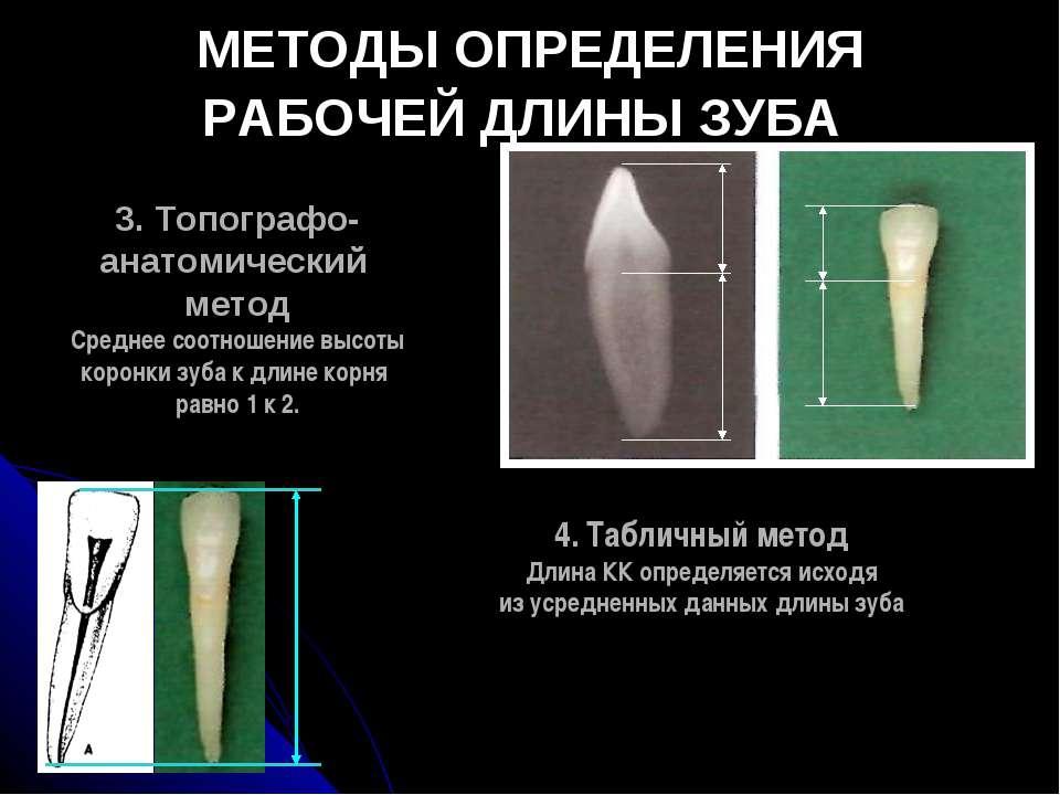 МЕТОДЫ ОПРЕДЕЛЕНИЯ РАБОЧЕЙ ДЛИНЫ ЗУБА 3. Топографо- анатомический метод Средн...