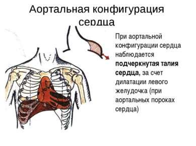 Аортальная конфигурация сердца При аортальной конфигурации сердца наблюдается...